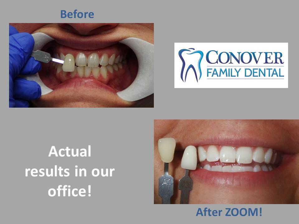 Zoom Whitening Conover Family Dental Serving Cincinnati Finneytown